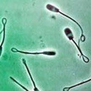 Астеноспермія