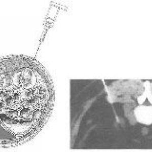 Біопсія раку нирки