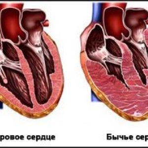Cімптоми бичачого серця у людини
