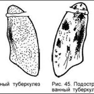 Дисемінований туберкульоз - діагностика, лікування