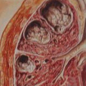 Фіброзно-кавернозний туберкульоз легень: патоморфологічні зміни