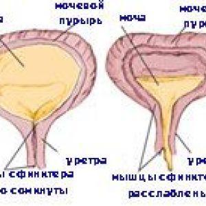 Нейрогенний сечовий міхур