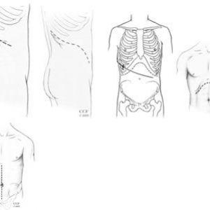 Хірургічне лікування раку нирки