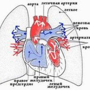 Хронічне легеневе серце при туберкульозі