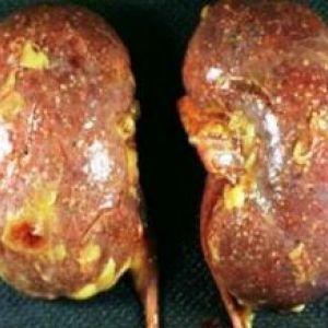 Хронічне запалення нирок (нефрит)