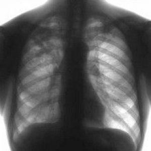 Інфільтративний туберкульоз легень: патоморфологія