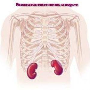 Ектопія нирок