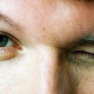 Як закопувати краплі в очі