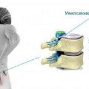 Як розвивається хребетна грижа?
