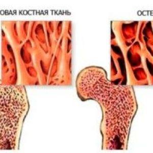 Як правильно розпізнати і лікувати остеопороз?