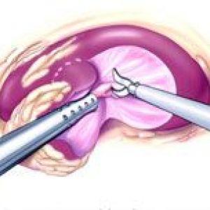 Лапароскопічна резекція нирки