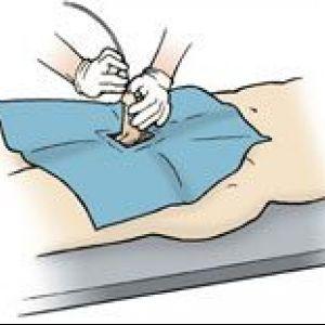 Лікування затримки сечі