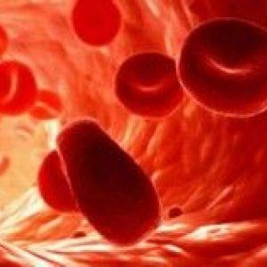 Легенева кровотеча - діагностика і лікування