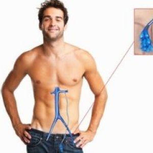 Чоловіче варикоцеле: причини виникнення та фактори ризику для розвитку захворювання
