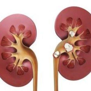 Нефролітіаз нирок і види каменів в нирках