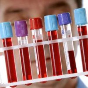 Норма білірубіну в крові