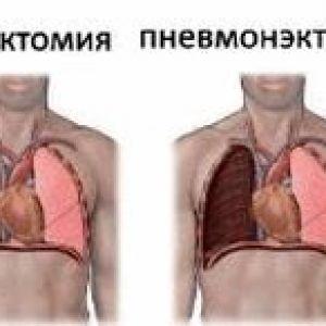 Оперативні втручання при туберкульозі органів дихання