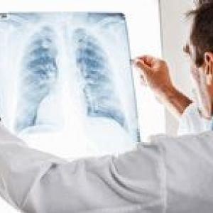 Організація системи виявлення туберкульозу в установах первинної медико-санітарної допомоги