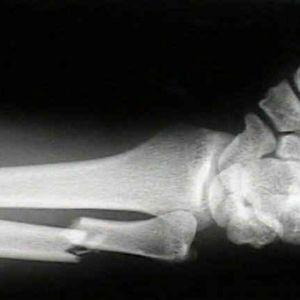 Переломи і перша допомога при переломах