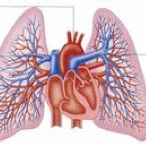 Перев`язка легеневої артерії