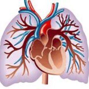 Перев`язка легеневих вен при туберкульозі