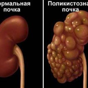 Полікістоз нирок