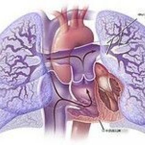 Причини розвитку хронічного легеневого серця
