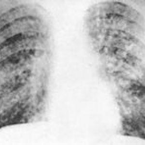 Рентгенологічні ознаки туберкульозного процесу