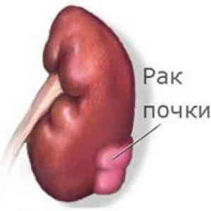 Резекція нирки