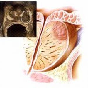 Симптоми раку простати