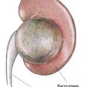 Солітарна (проста) кіста нирки: діагностика і принципи лікування