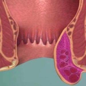 Тромбоз гемороїдального вузла, його діагностика, симптоматика, фото і способи лікування