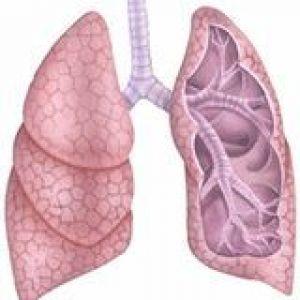 Туберкульоз бронхів, трахеї, верхніх дихальних шляхів: патоморфологічні зміни