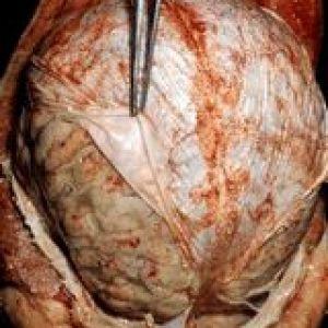 Туберкульоз центральної нервової системи