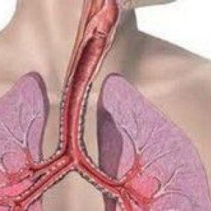 Туберкульоз гортані, трахеї і бронхів