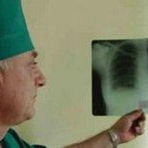 Туберкульоз і хнзл