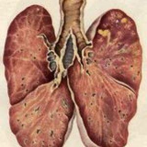 Туберкульоз і психічні захворювання