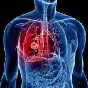 Туберкульоз і рак легенів
