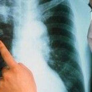 Tyберкулез - супутні захворювання