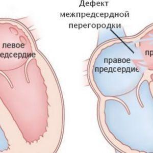 Виявлення та лікування дефекту міжпередсердної перегородки у дітей